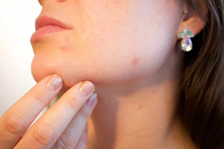 Skin Care Living - Transition from Teenager to Young Adult - How Aging Affects the Skin